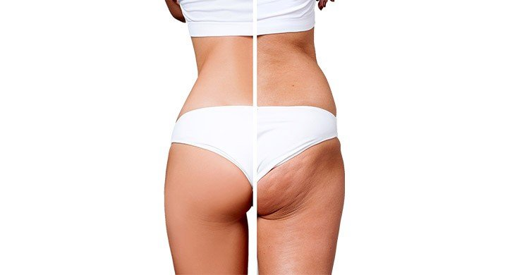 My Cellulite Solution review 5